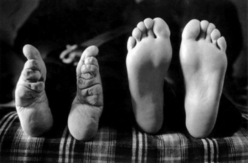 pieds bandes