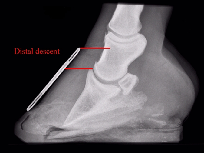 distal descent